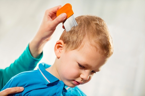 Dealing with nits in small children